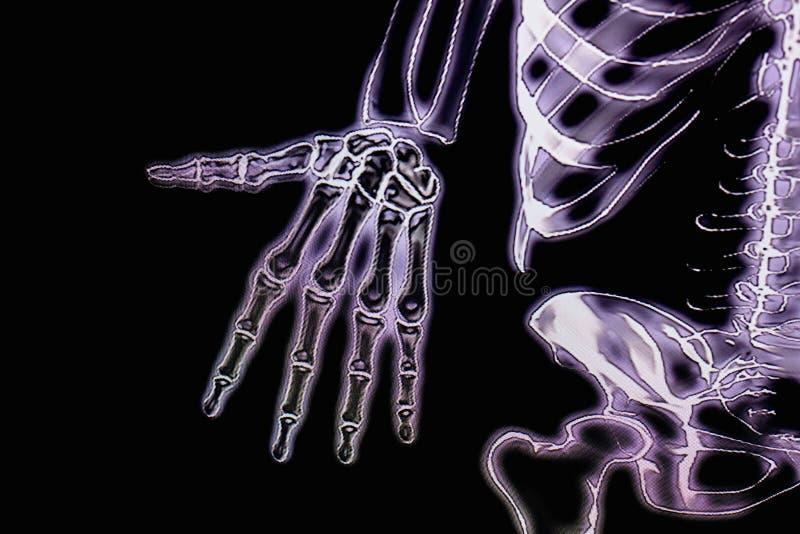 Mänskligt hand- och kroppröntgenstrålediagram arkivfoto