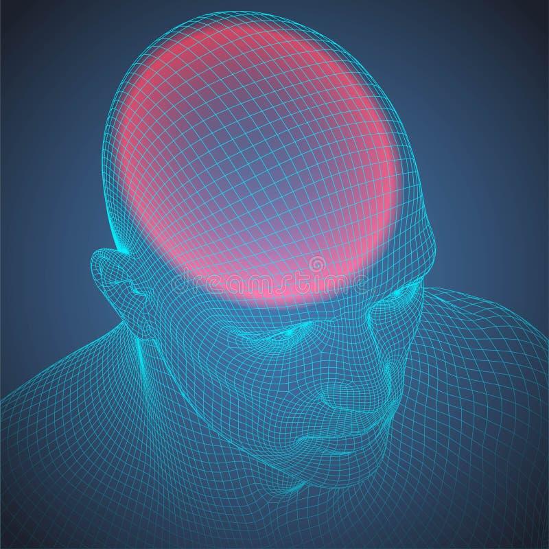 Mänskligt huvud för huvudvärktrådram stock illustrationer