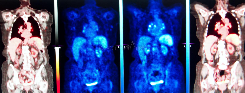 Médecine nucléaire de série de Pet/ct photos stock