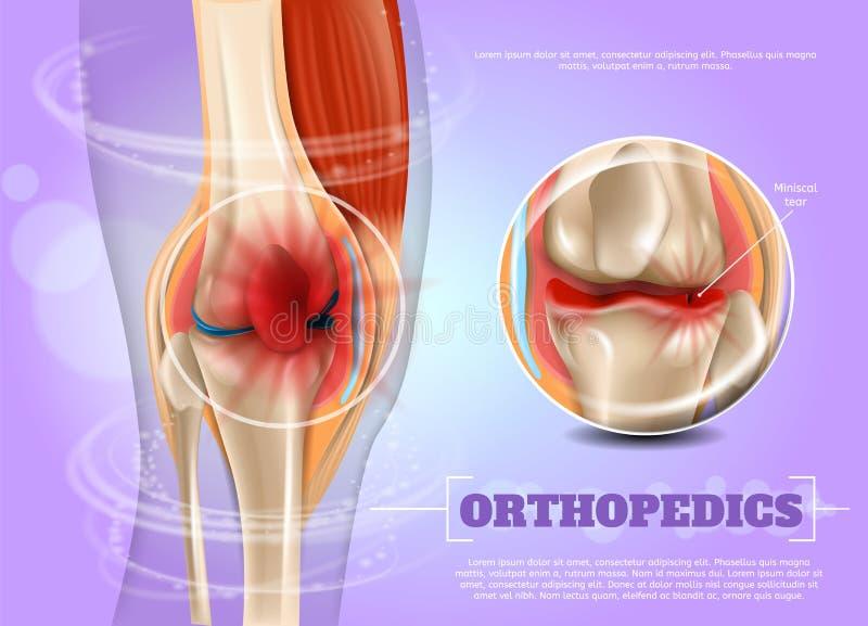 Médecine réaliste d'orthopédie d'illustration dans 3d illustration stock