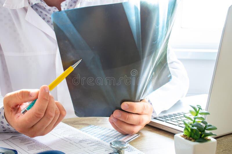 Médico indica ao doente durante a consulta fratura óssea no radiógrafo Na imagem, fratura claramente visível da tubula longa fotos de stock