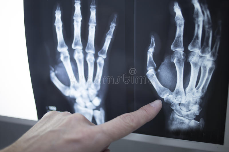 Médico que señala en la imagen de la radiografía de la radiografía imagenes de archivo