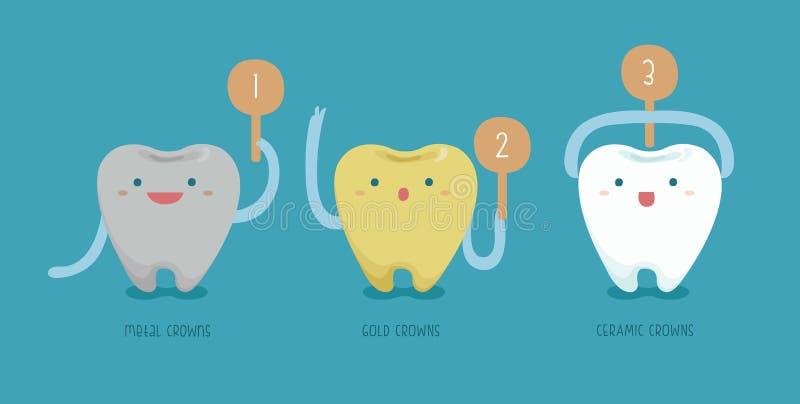 Métal, en céramique, corneilles d'or de dentaire illustration de vecteur