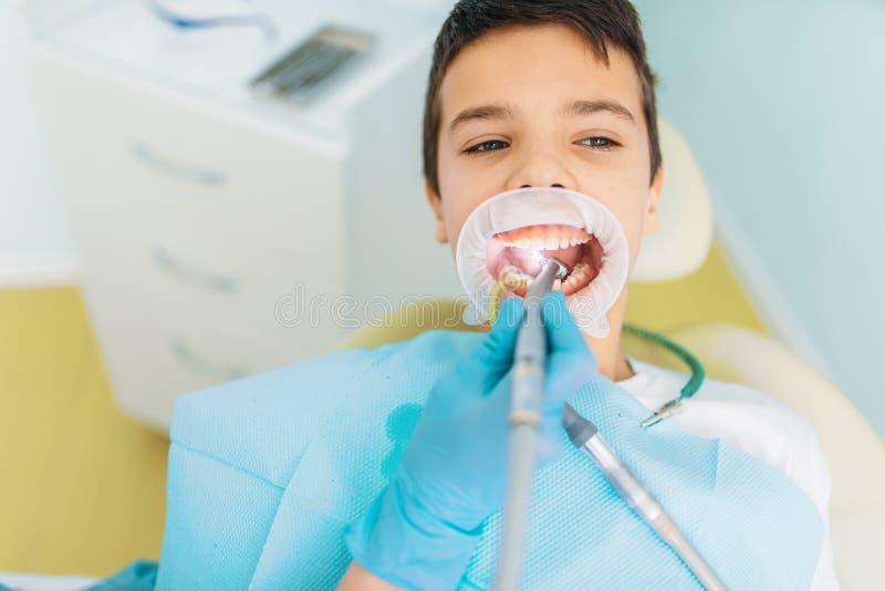 Méthode de dépose de carie, art dentaire pédiatrique photographie stock