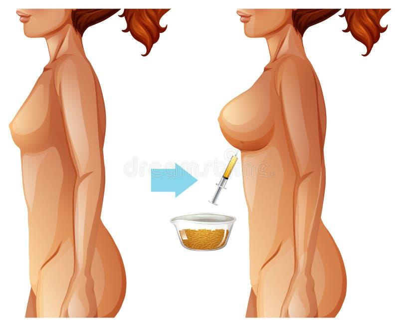 Método gordo de la transferencia del aumento del pecho ilustración del vector