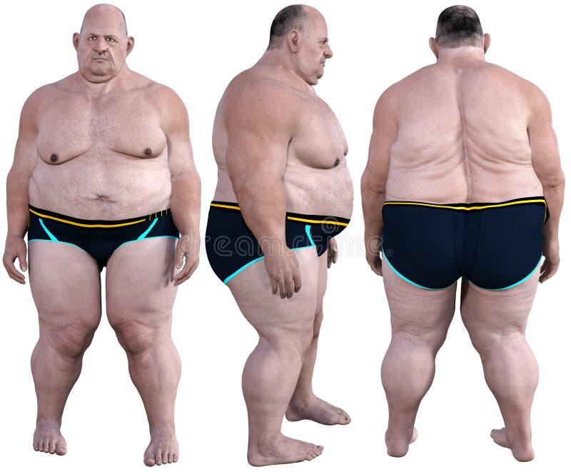 Mórbidamente obeso, gordo, obesidad, aislada imagen de archivo libre de regalías