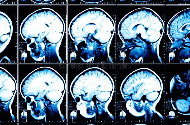 Mózg radiologiczny wizerunek zdjęcie royalty free