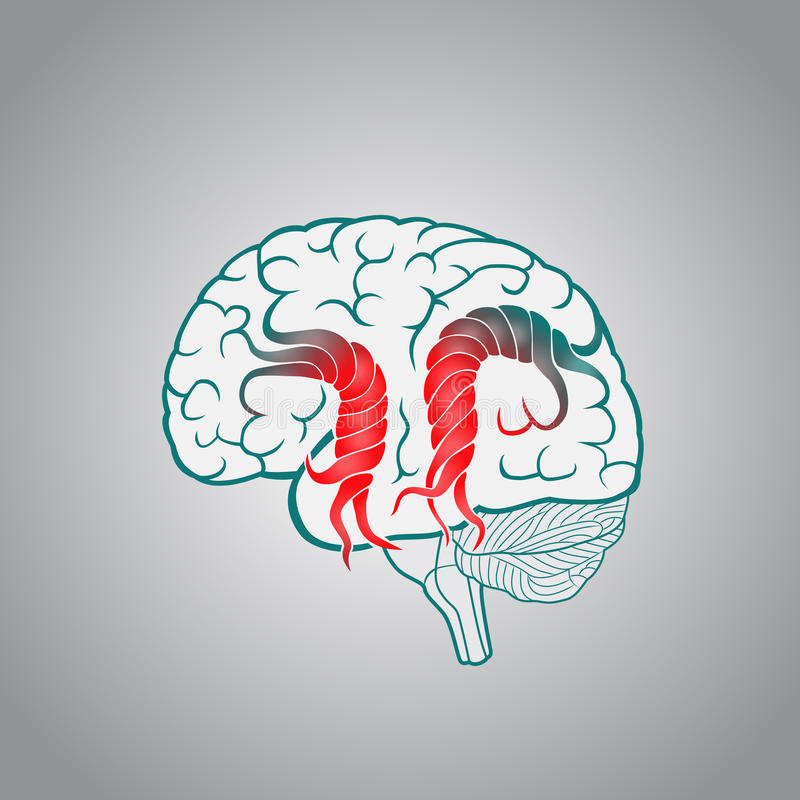 Mózg z kręconymi zwinięciami zniszczenie mózg, uderzenie, pamięć ilustracja wektor