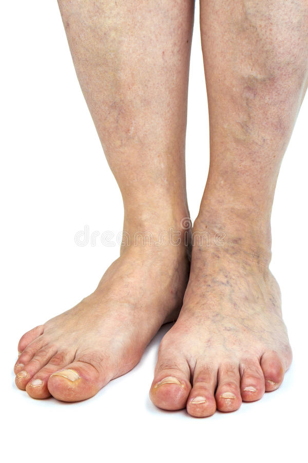 Músculo del becerro como bomba para las venas profundas de la pierna foto de archivo libre de regalías