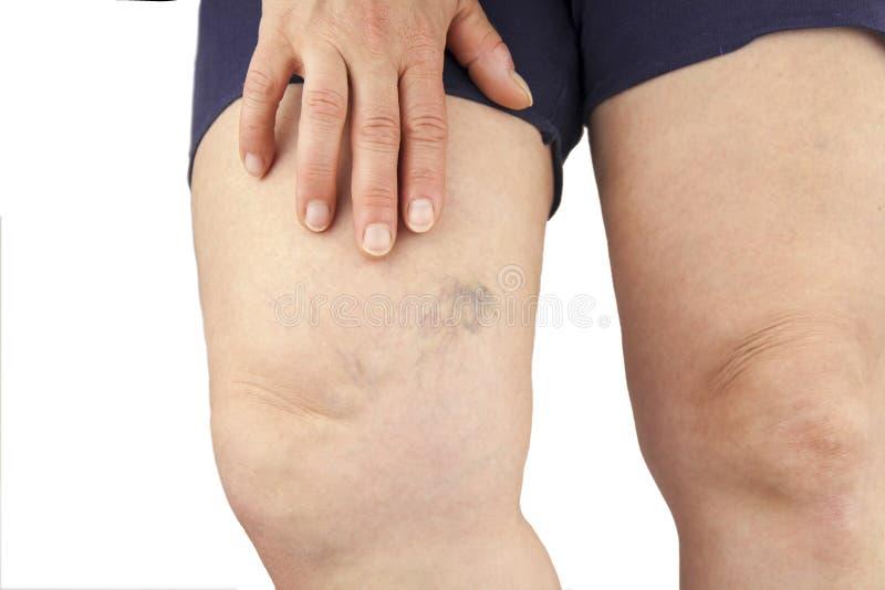 Músculo del becerro como bomba para las venas profundas de la pierna foto de archivo