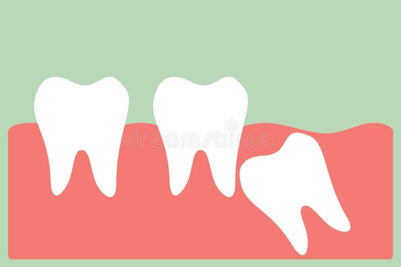 Mądrość ząb ilustracji