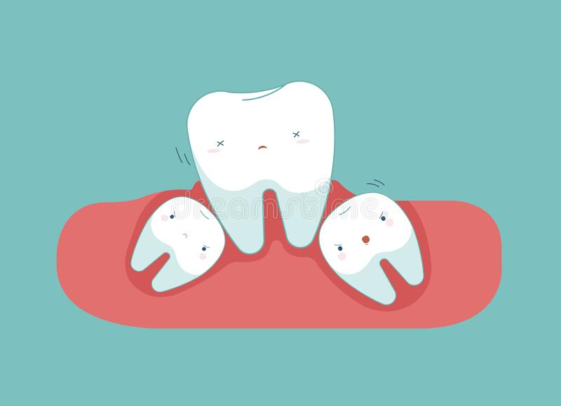 Mądrość ząb robi zębowi gubić równowagę, stomatologiczny zdrowy pojęcie obrazy royalty free