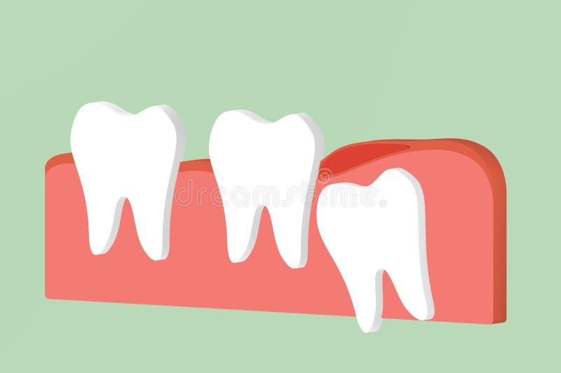 Mądrość zębu graniasty lub mesial wciśnięcie z rozognienie afektem inni zęby royalty ilustracja