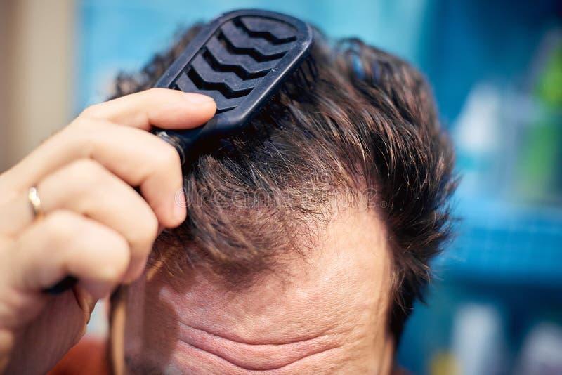 Mężczyźni brudzą nieuczesanego włosy wcześnie rano obraz stock