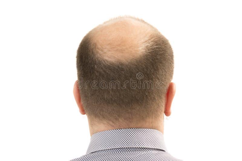Mężczyzna alopecia baldness włosiana strata odizolowywająca obrazy stock