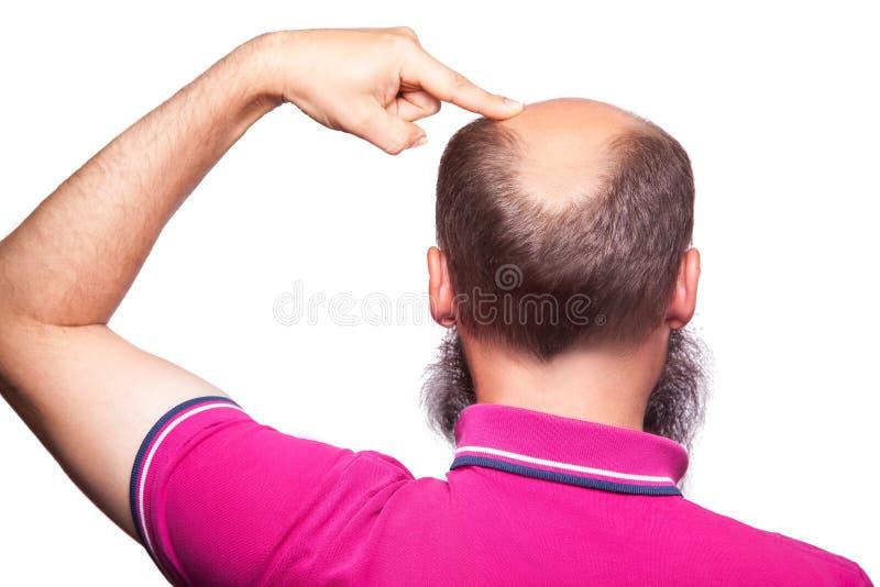 Mężczyzna alopecia baldness włosiana strata odizolowywająca obrazy royalty free