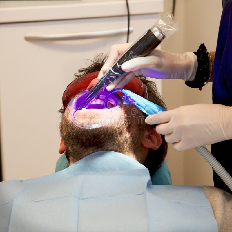 Mężczyzna dostaje stomatologiczną operację i laseru traktowanie obraz stock
