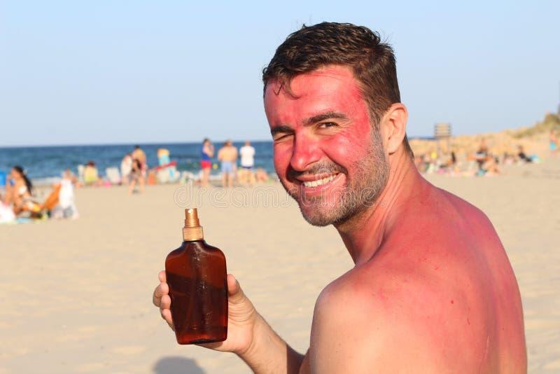 Mężczyzna pokazuje skórniczą płukankę podczas gdy dostawać sunburned zdjęcie stock