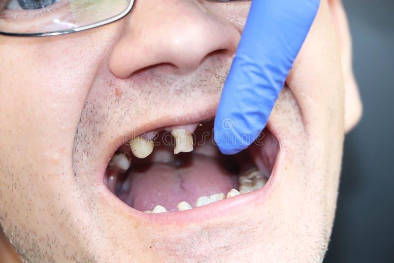 Mężczyzna przegniłych zęby, zęby spadał za, żółci i czarni, zęby krzywdzący Biedny zębu warunek, erozja, próchnicy Lekarka przygo zdjęcia royalty free