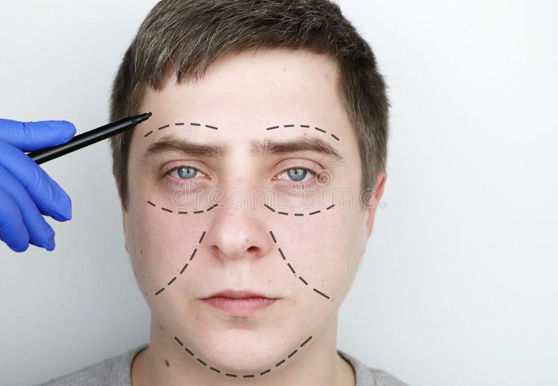 Mężczyzna przy przyjęciem przy chirurgiem plastycznym Przed chirurgią plastyczną: brwi, czoła, podbródka i policzka dźwig obrazy stock