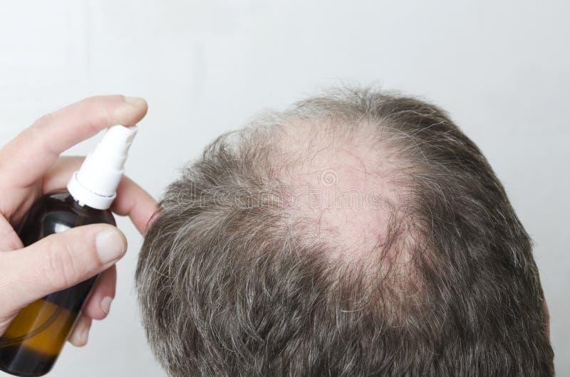 Mężczyzna używa kosmetyki dla włosianego wzrostowego pobudzenia Pojęcie piękna traktowanie rozwiązywać problem lossing włosy obraz royalty free
