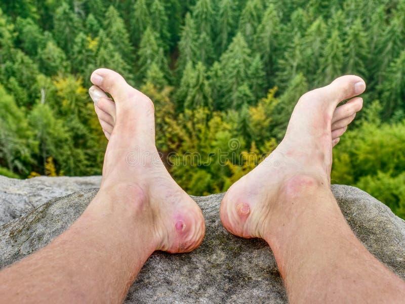 Mężczyzna wycieczkowicz zdejmował przepoconych buty na halnych skał Pięknej pogodzie zdjęcia stock