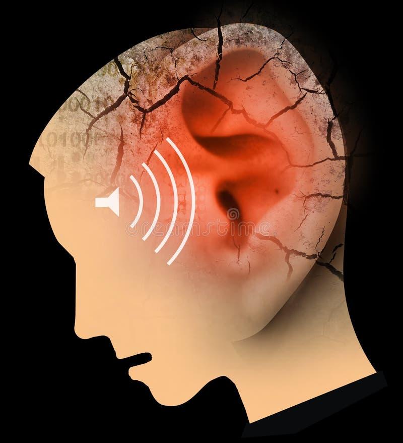 Mężczyzna z dużą czerwoną krakingową głową i ucho, symbolizujący tinnitus i ucho problemy royalty ilustracja