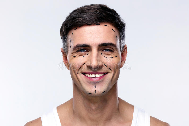 Mężczyzna zaznaczający z liniami dla chirurgii plastycznej fotografia stock