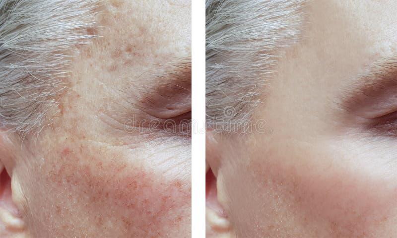 Mężczyzna zmarszczenia przed i po procedurami, trądzik pigmentacja fotografia royalty free