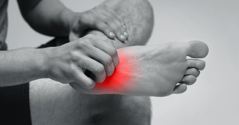 Mężczyzny chrobota świąd na jego stopie z czerwoną wysypką zdjęcia royalty free