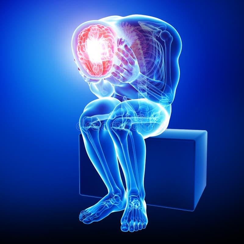 Męski mózg ból ilustracja wektor