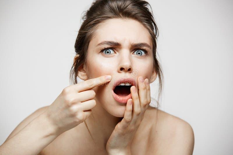 Młoda brunetki dziewczyna nierada jej problemowa trądzik twarzy skóra nad białym tłem Zdrowia skincare i kosmetologia zdjęcia royalty free