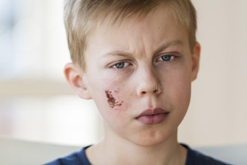 Młoda chłopiec z twarz urazem obrazy stock