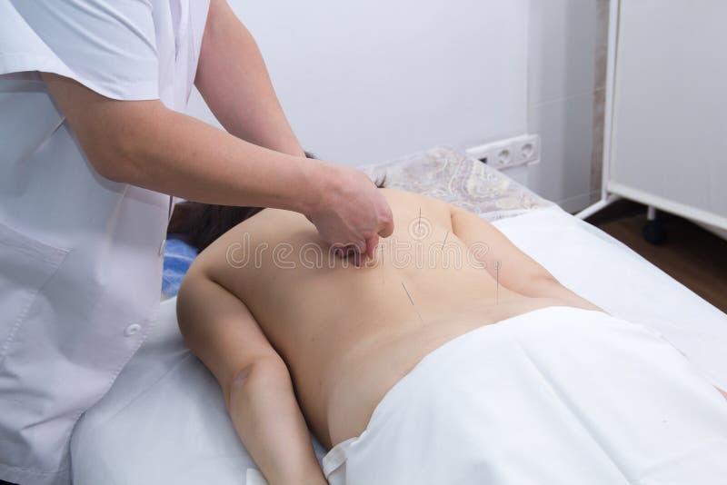 Młoda kobieta bierze akupunktury traktowanie Wkładać igły w plecy zdjęcia stock