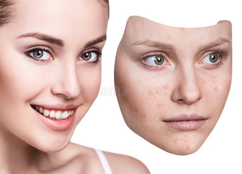 Młoda kobieta stawia oddaloną maskę z złą skórą fotografia stock