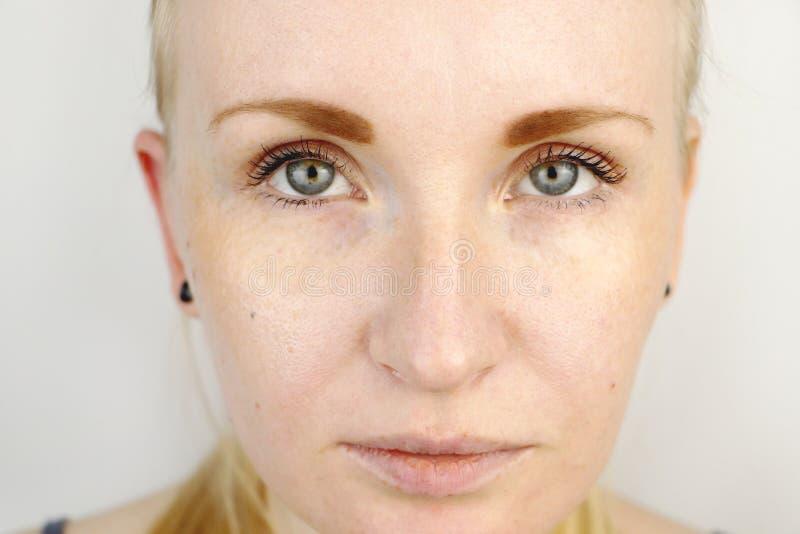 Młoda piękna blond kobieta z suchymi wargami zdjęcie royalty free