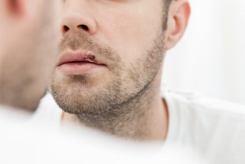 Młodego człowieka cierpienie od herpes na jego usta zdjęcia royalty free