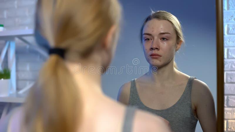 Młody żeński patrzeje dojrzałości płciowej twarzy trądzik w lustrzanego odbicia uczuciu deprymującym zdjęcie royalty free