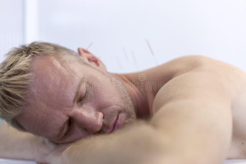 Młody człowiek dostaje akupunktury traktowanie szyja i ramiona, zbliżenie obrazy royalty free