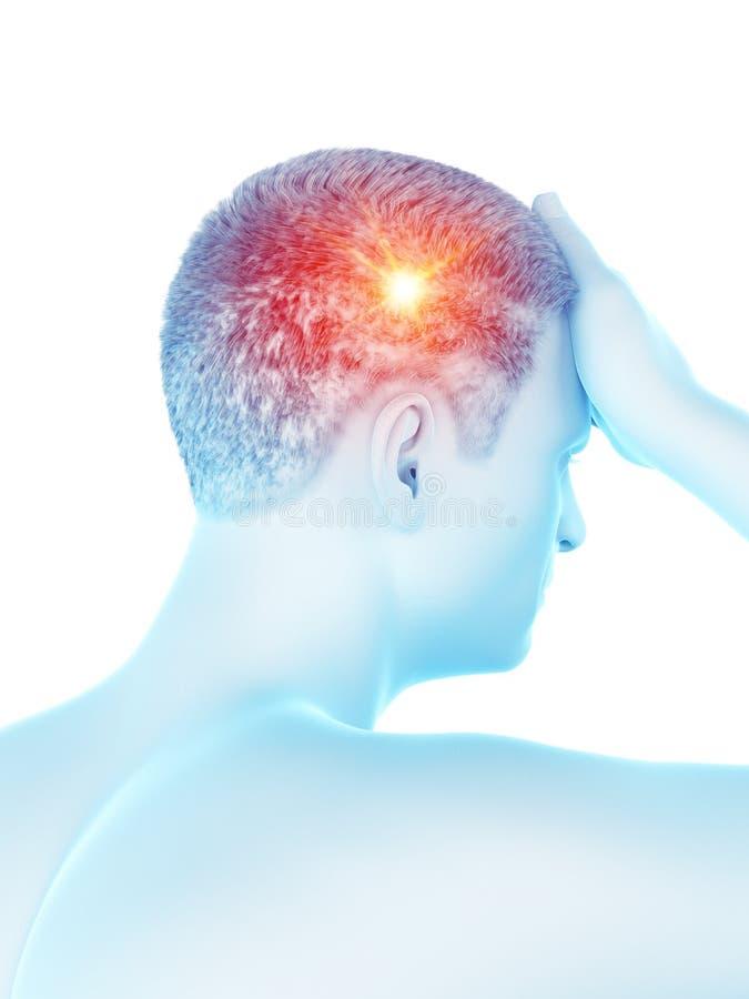 M??czyzna ma migren? ilustracja wektor