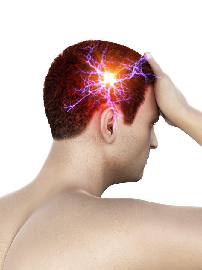 M??czyzna ma migren? ilustracji