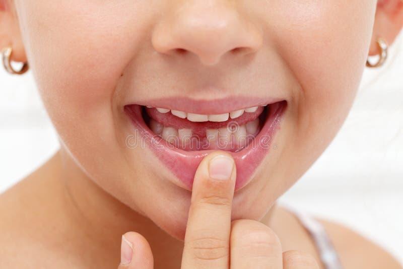 Małej dziewczynki pierwszy zębu chybianie zdjęcie royalty free