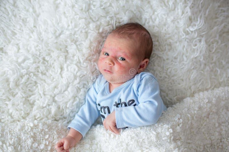 Mały nowonarodzony dziecka dosypianie, dziecko z scin wysypką fotografia stock