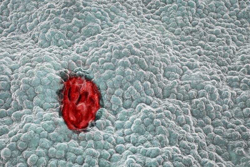 Maagmucosa met zweer stock illustratie