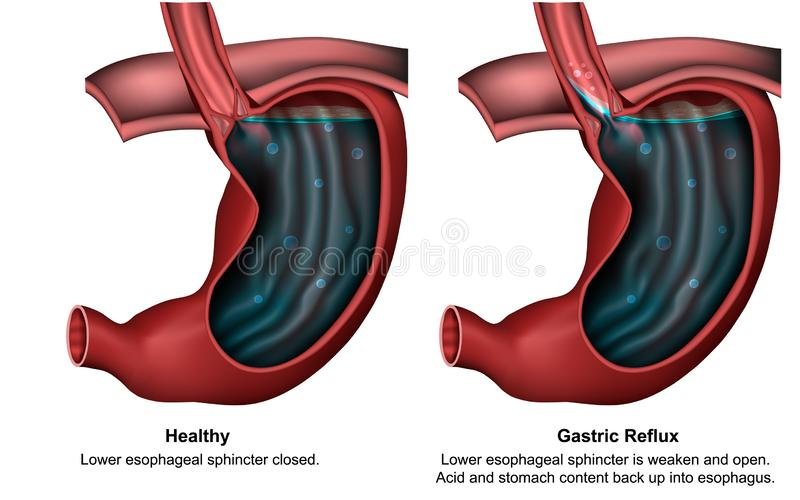 Maagterugvloeiings 3d medische illustratie met Engelse beschrijving stock illustratie