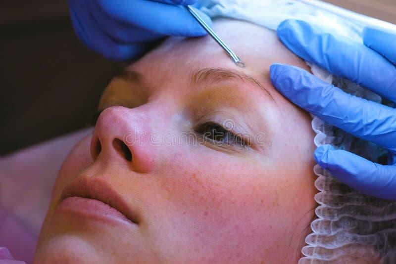 Machinalny czyścić twarz przy beautician Cosmetologist ściśnięcie trądzik na czole pacjent z zdjęcia stock