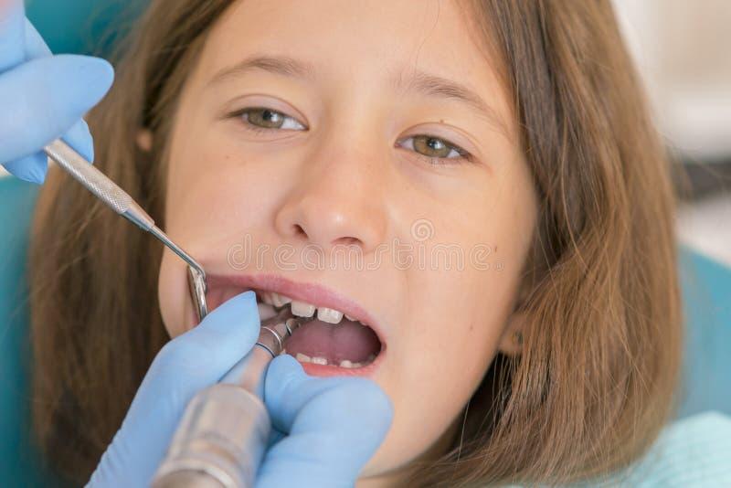 Macro étroit de l'enfant en bas âge avec la bouche ouverte au contrôle de Teeth de dentiste au dentist& x27 ; bureau de s Dents d photo stock