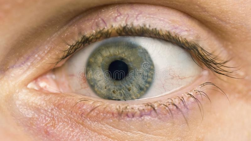 Macro of conjunctivitis red eye. royalty free stock images