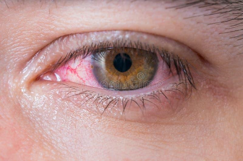 Macro d'oeil de rouge de conjonctivite image stock