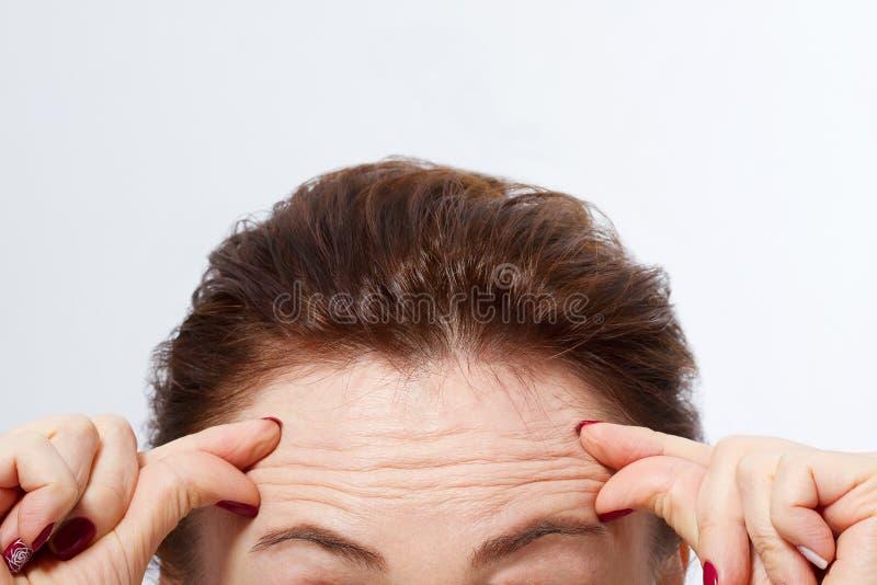 Macro fronte della donna con le grinze sulla fronte Concetto delle iniezioni del fronte e del collagene menopause Immagine potata immagini stock libere da diritti